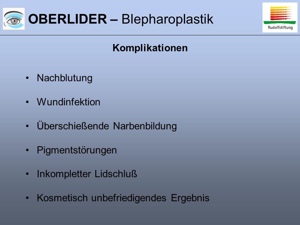 OBERLIDER – Blepharoplastik