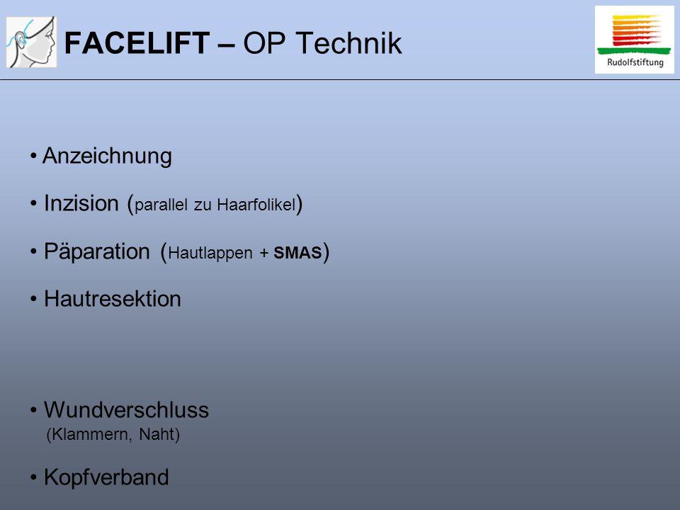 FACELIFT – OP Technik Anzeichnung Inzision (parallel zu Haarfolikel)