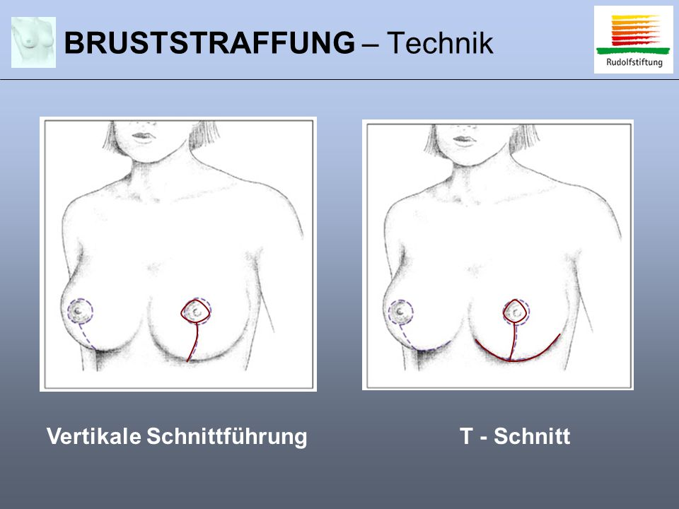 BRUSTSTRAFFUNG – Technik