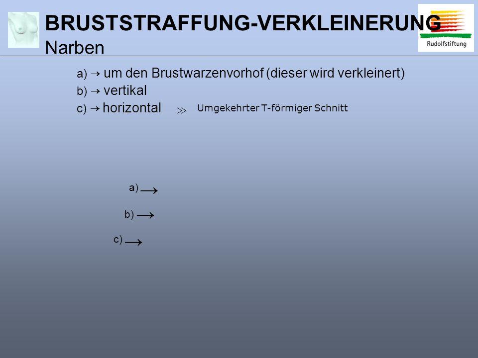 BRUSTSTRAFFUNG-VERKLEINERUNG Narben
