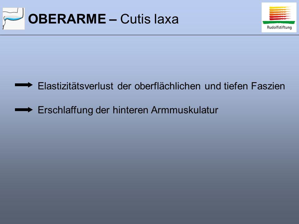 OBERARME – Cutis laxa Elastizitätsverlust der oberflächlichen und tiefen Faszien.