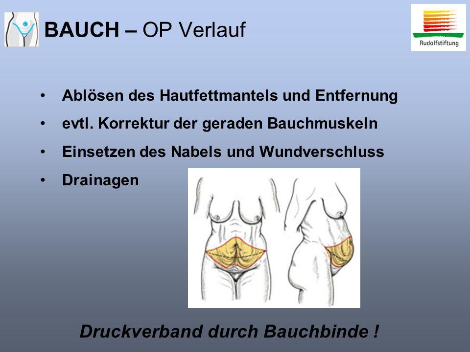 BAUCH – OP Verlauf Druckverband durch Bauchbinde !
