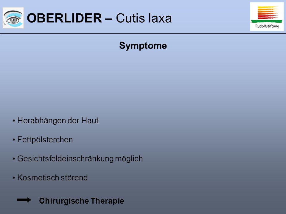 OBERLIDER – Cutis laxa Symptome Herabhängen der Haut Fettpölsterchen