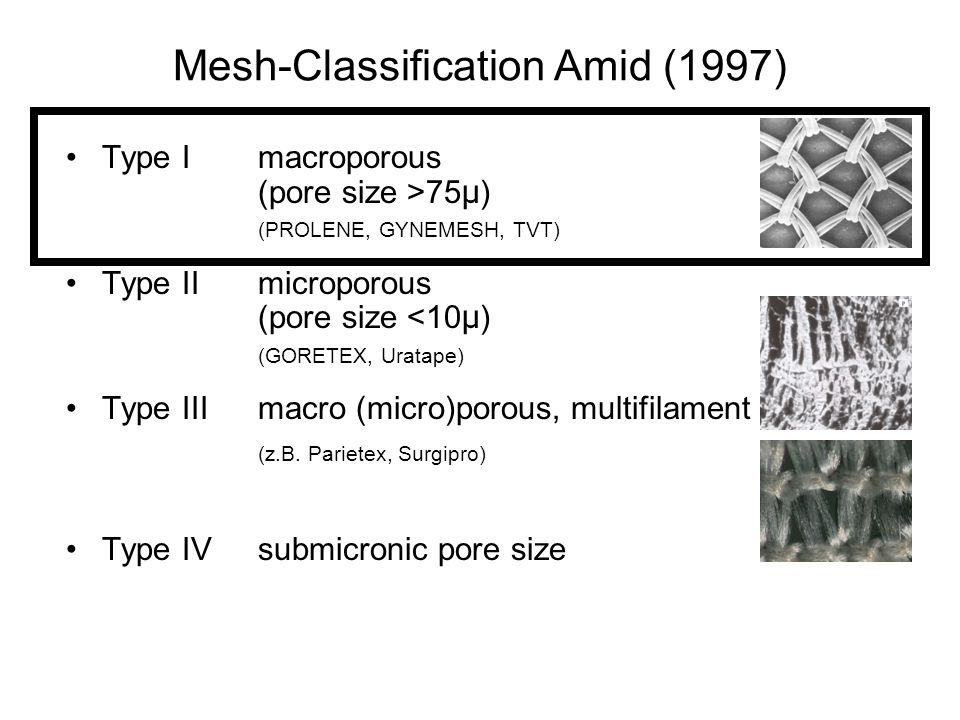Mesh-Classification Amid (1997)