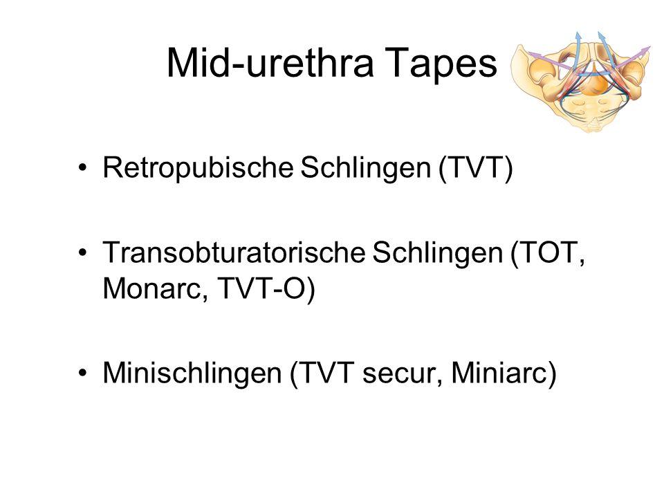 Mid-urethra Tapes Retropubische Schlingen (TVT)