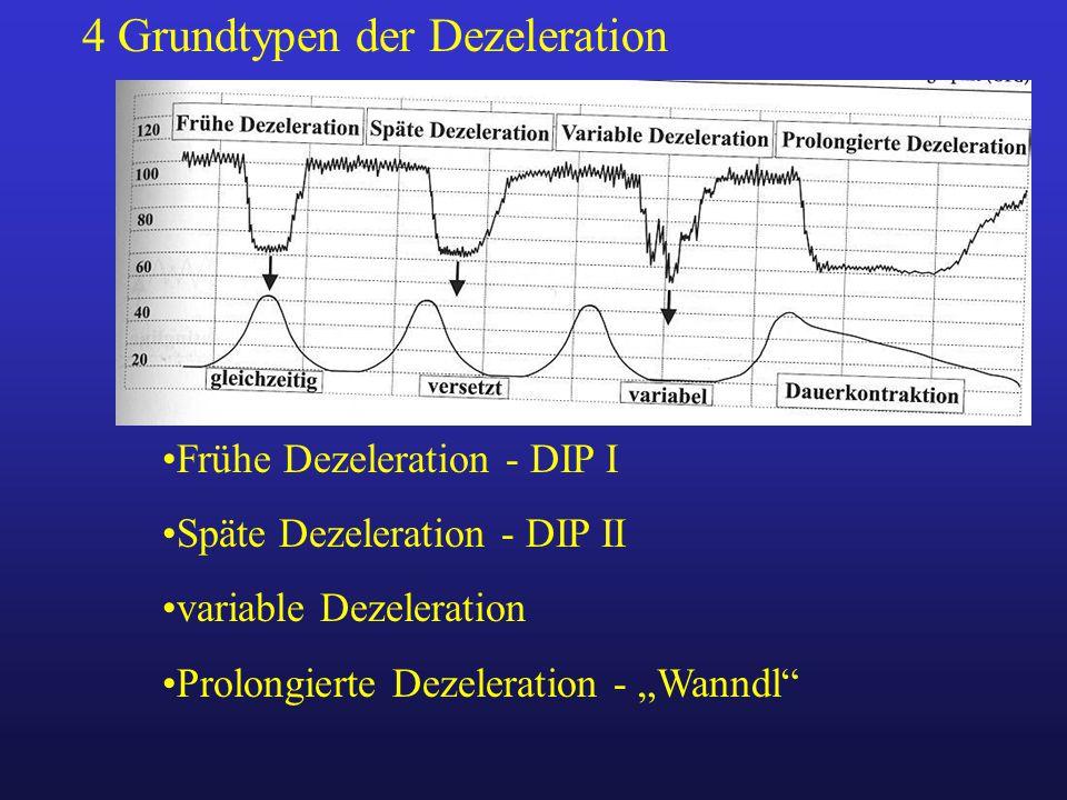 4 Grundtypen der Dezeleration