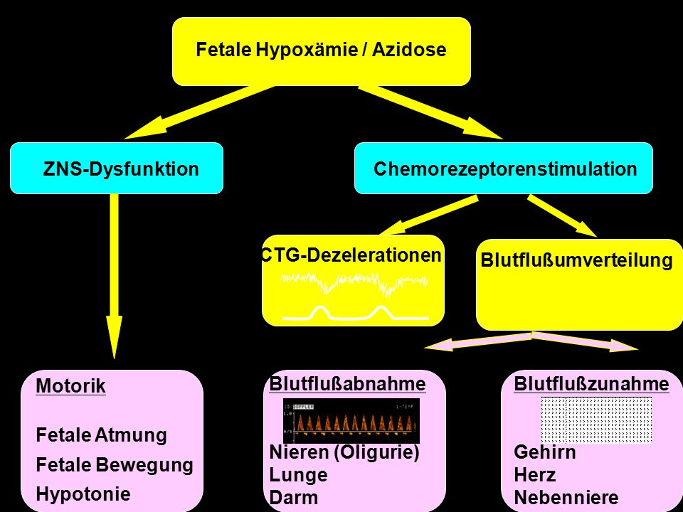 Fetale Hypoxämie / Azidose