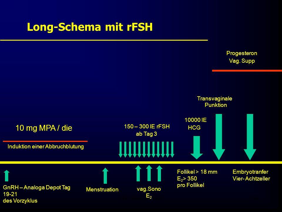 Long-Schema mit rFSH Progesteron Transvaginale 10000 IE