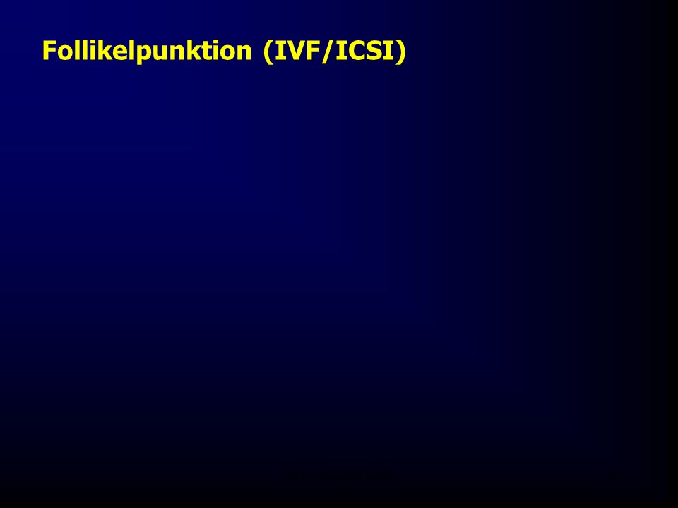 Follikelpunktion (IVF/ICSI)