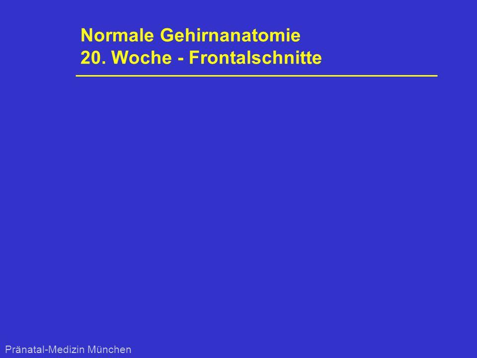 Normale Gehirnanatomie 20. Woche - Frontalschnitte