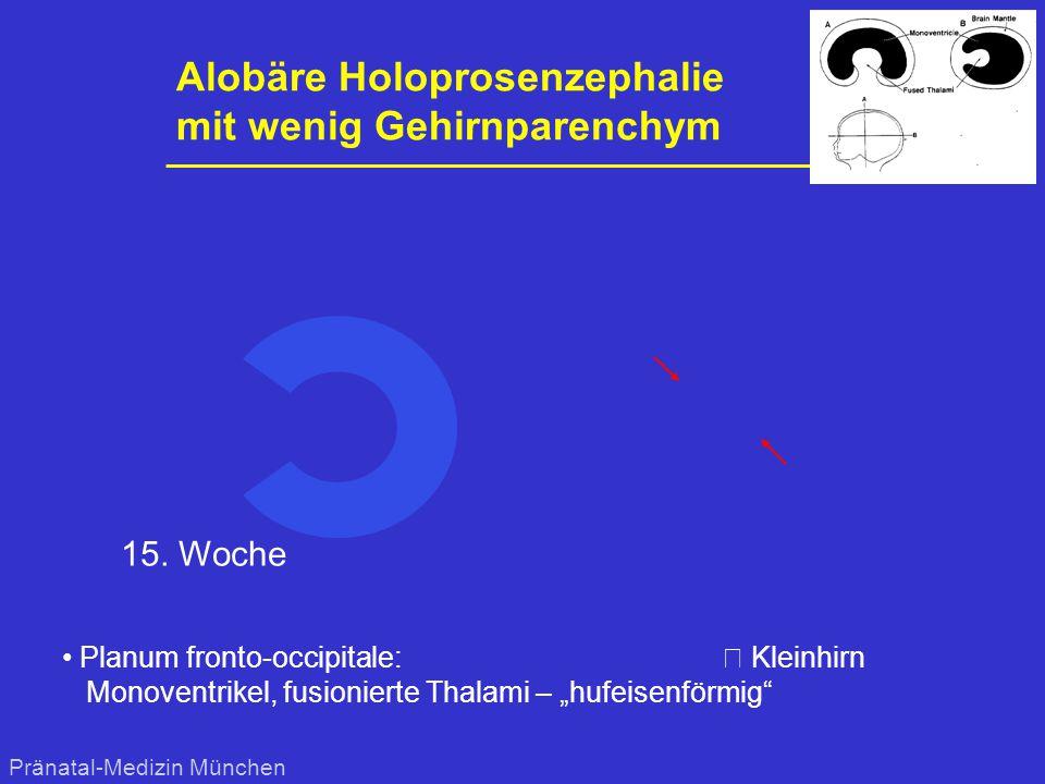 Alobäre Holoprosenzephalie mit wenig Gehirnparenchym