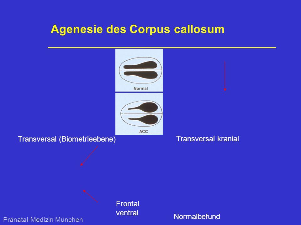 Agenesie des Corpus callosum