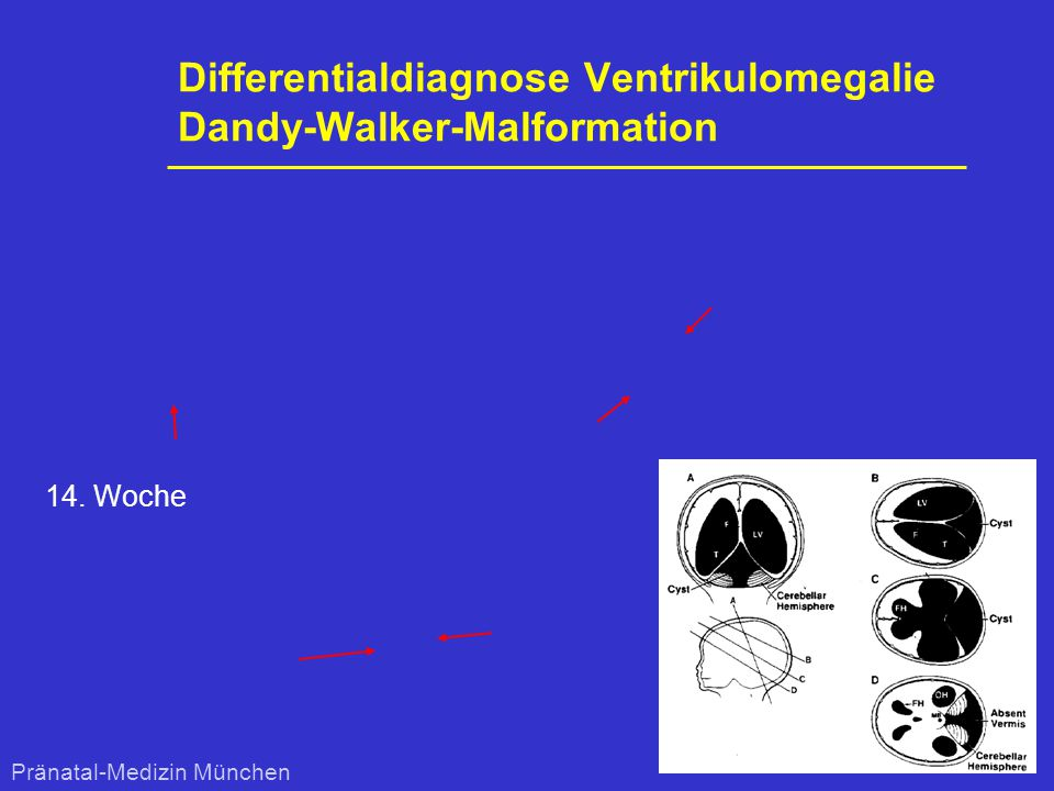 Differentialdiagnose Ventrikulomegalie Dandy-Walker-Malformation