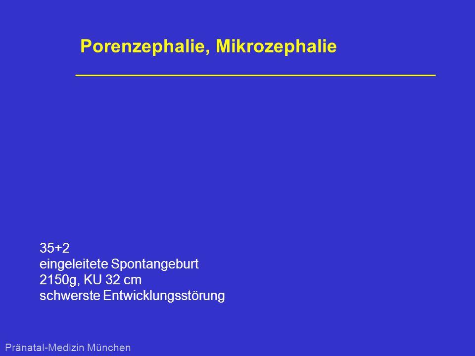 Porenzephalie, Mikrozephalie