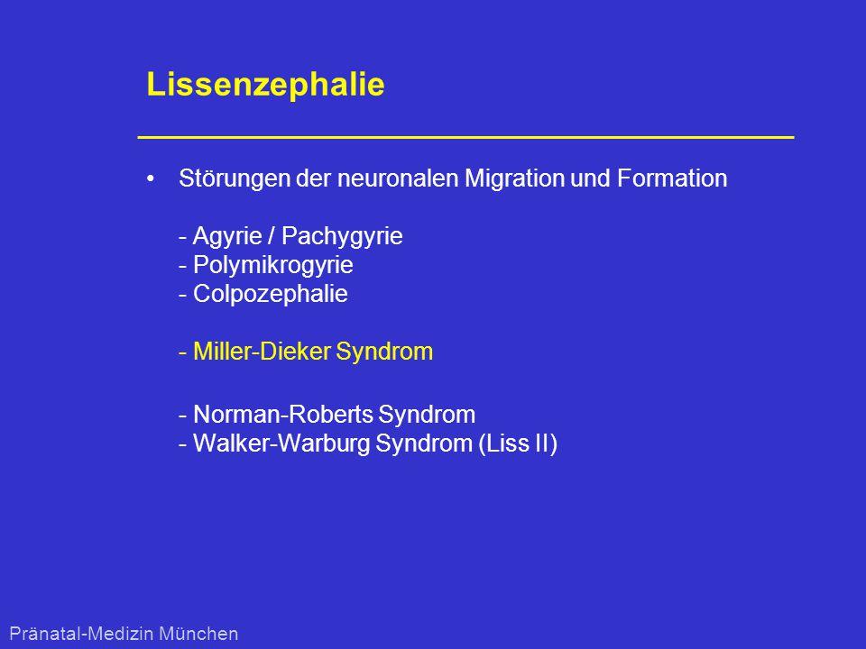 Lissenzephalie Störungen der neuronalen Migration und Formation - Agyrie / Pachygyrie - Polymikrogyrie - Colpozephalie - Miller-Dieker Syndrom.