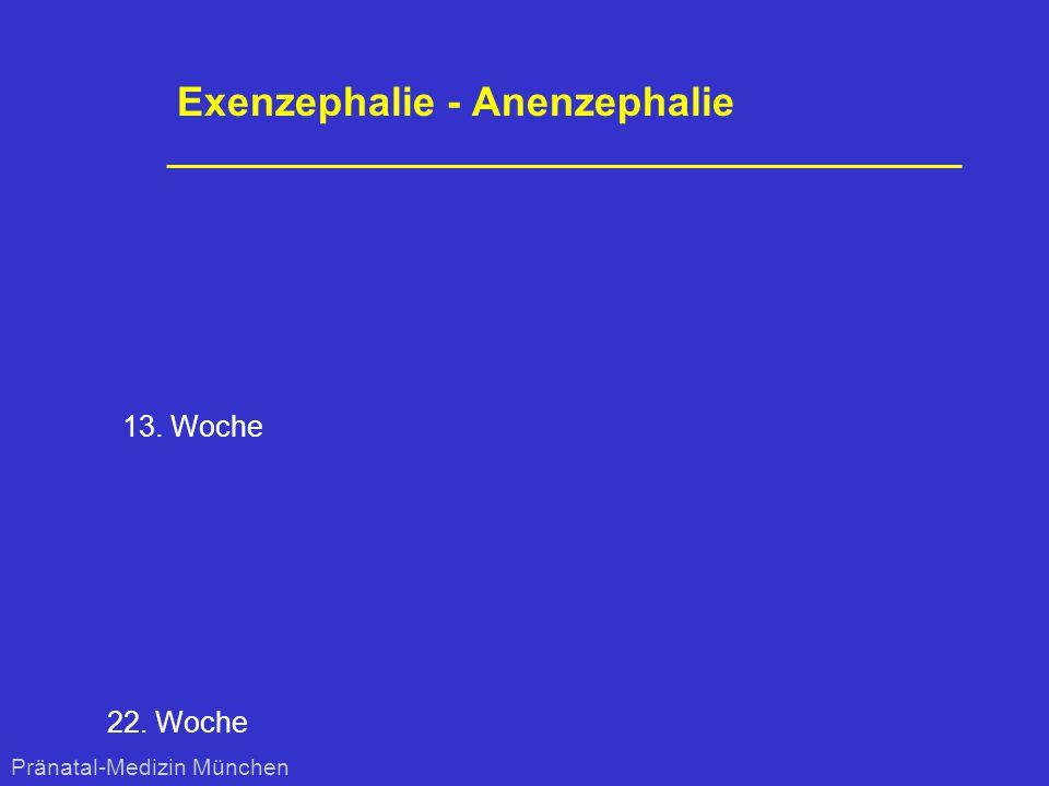 Exenzephalie - Anenzephalie