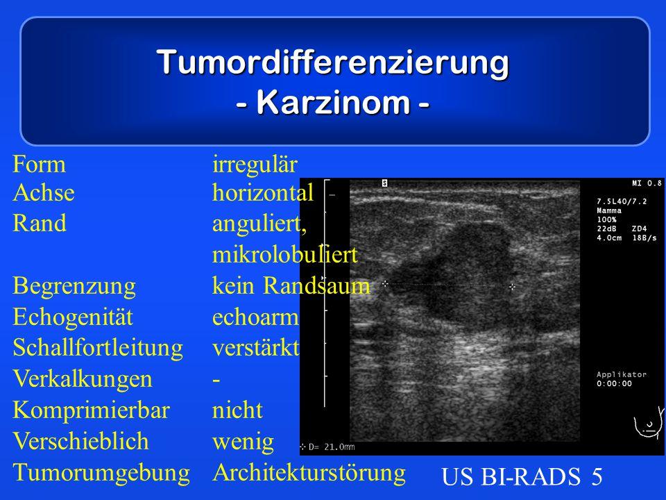 Tumordifferenzierung - Karzinom -