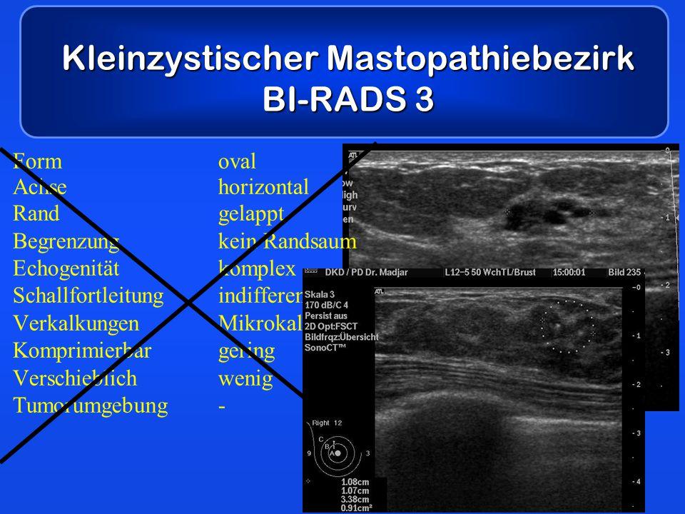 Kleinzystischer Mastopathiebezirk BI-RADS 3