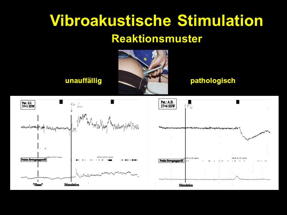 Vibroakustische Stimulation