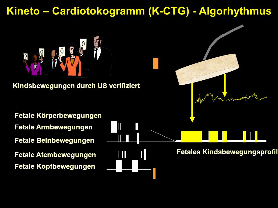 Kineto – Cardiotokogramm (K-CTG) - Algorhythmus
