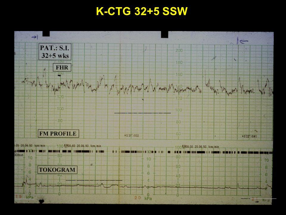 K-CTG 32+5 SSW