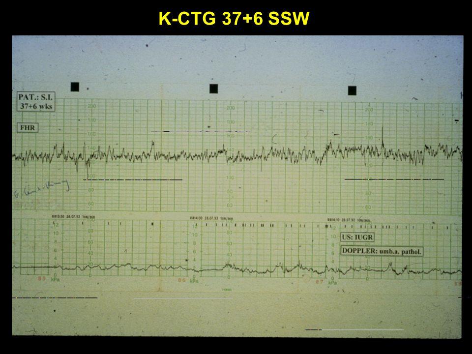 K-CTG 37+6 SSW
