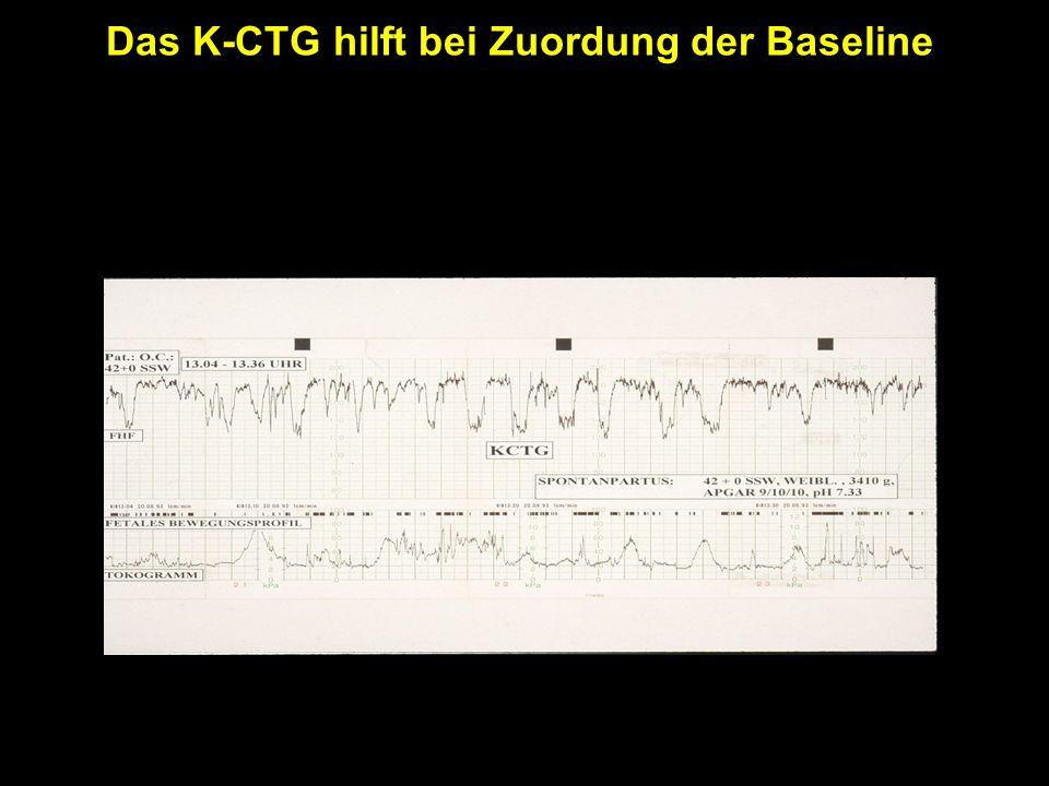 Das K-CTG hilft bei Zuordung der Baseline Fetales Bewegungsprofil