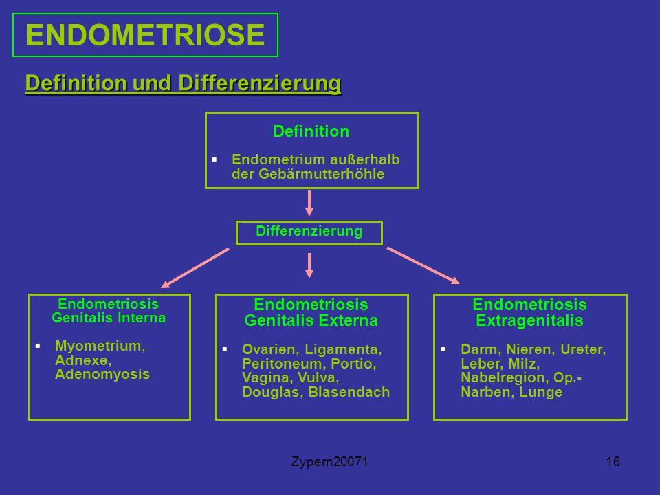 Endometriosis Genitalis Interna Endometriosis Genitalis Externa