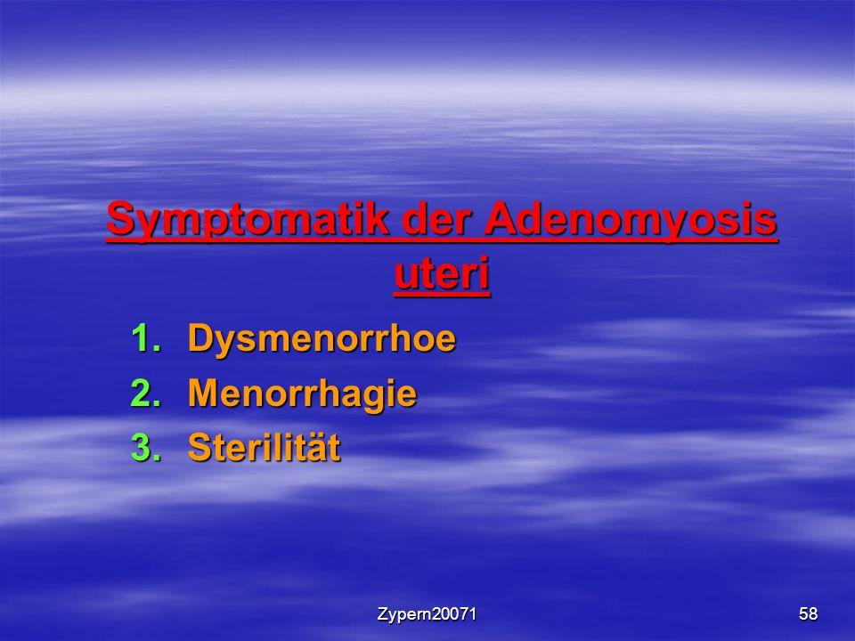 Symptomatik der Adenomyosis uteri