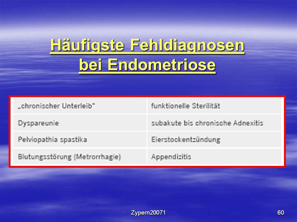 Häufigste Fehldiagnosen bei Endometriose