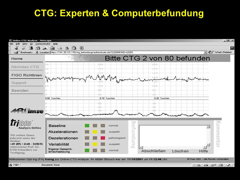 CTG: Experten & Computerbefundung