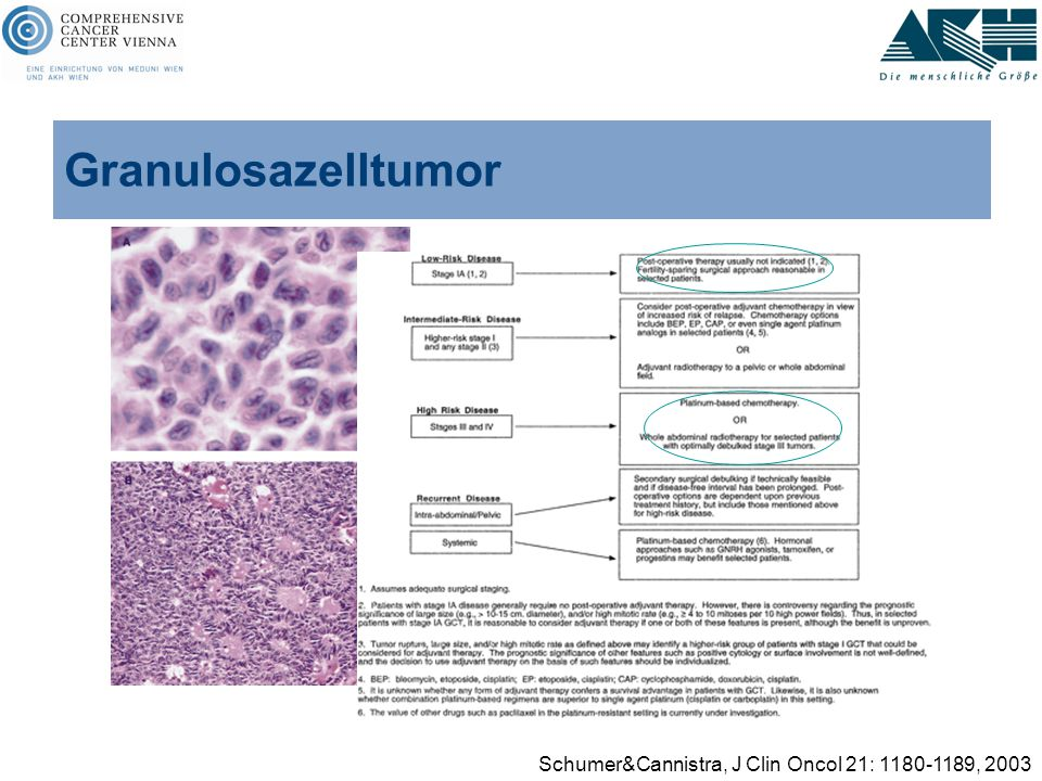 Granulosazelltumor Schumer&Cannistra, J Clin Oncol 21: 1180-1189, 2003