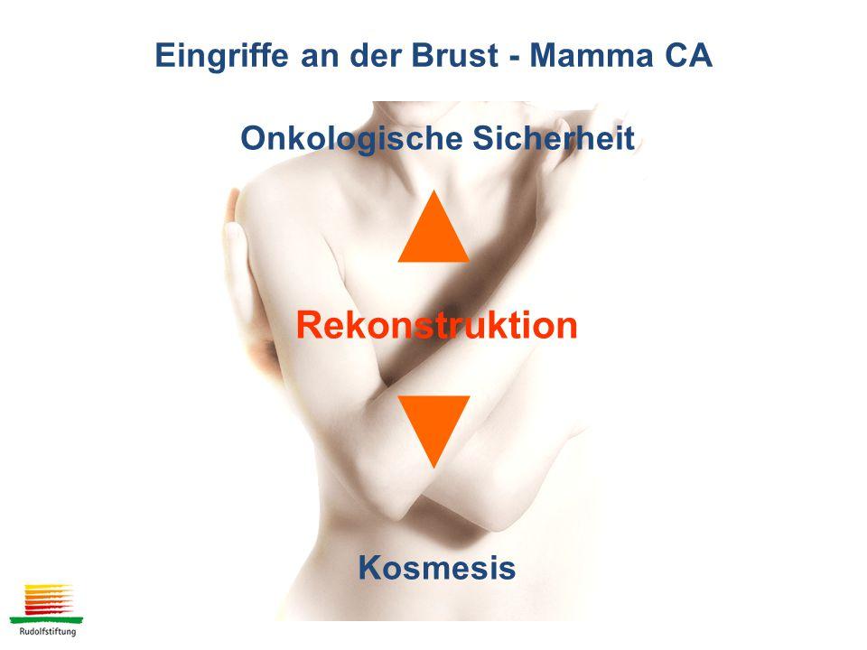 Eingriffe an der Brust - Mamma CA