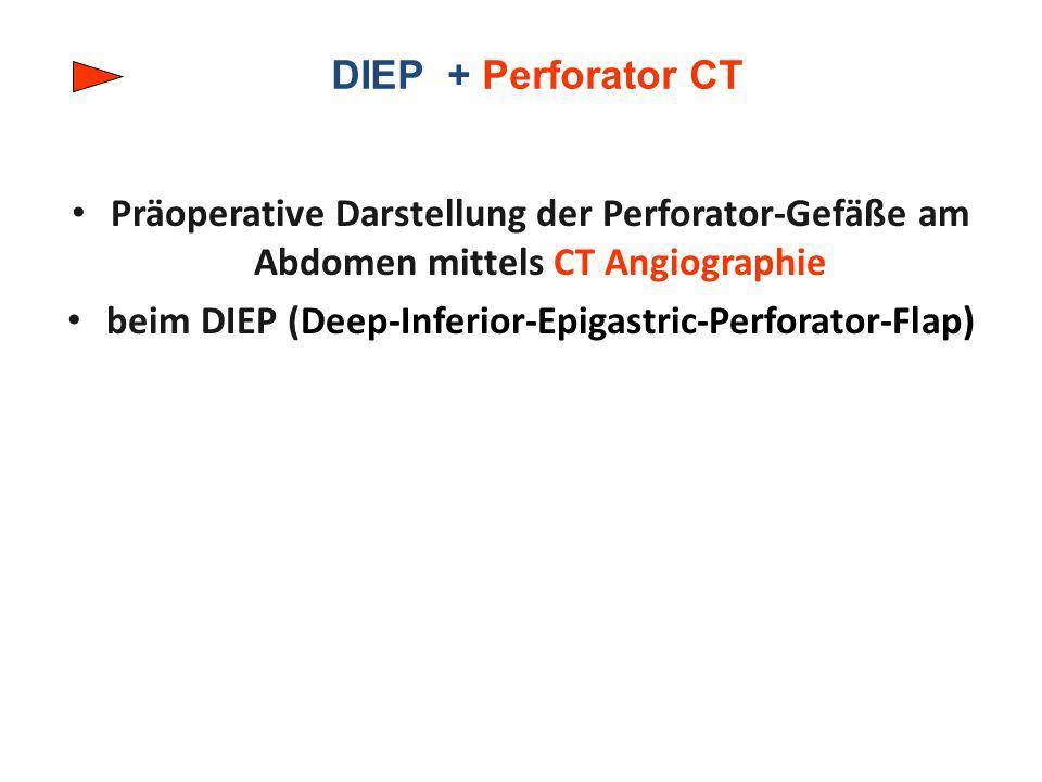 beim DIEP (Deep-Inferior-Epigastric-Perforator-Flap)