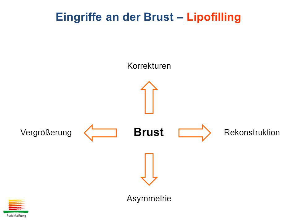 Eingriffe an der Brust – Lipofilling