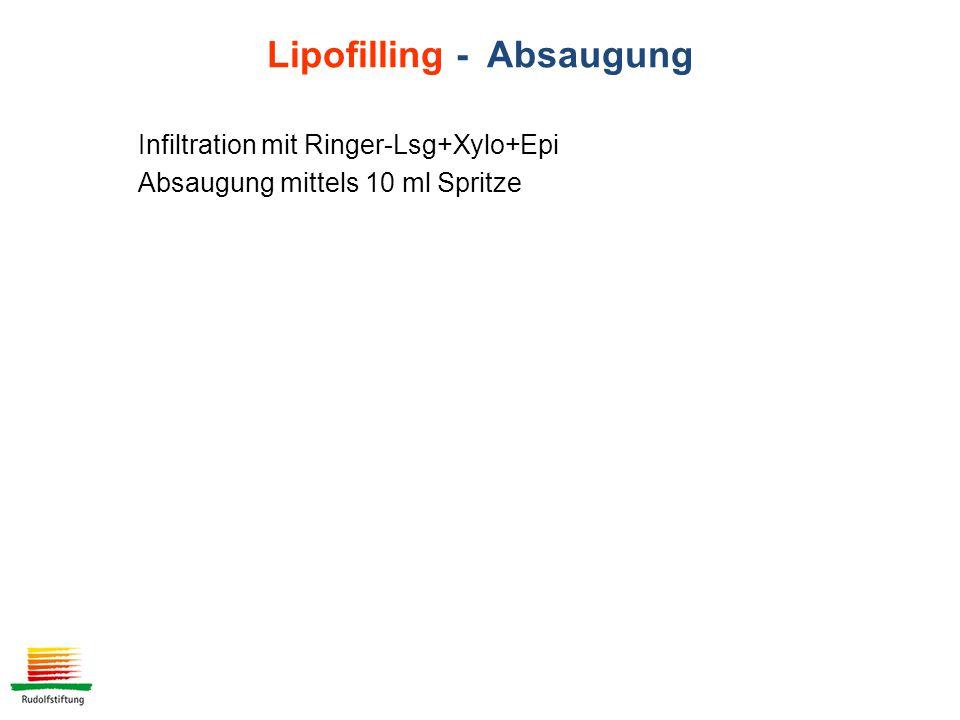 Lipofilling - Absaugung