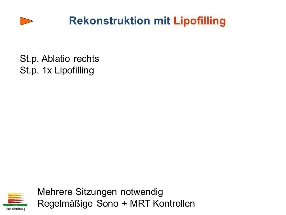 Rekonstruktion mit Lipofilling