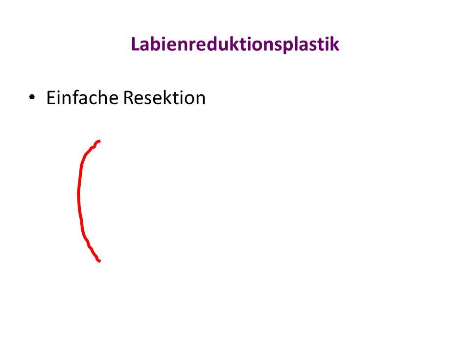 Labienreduktionsplastik
