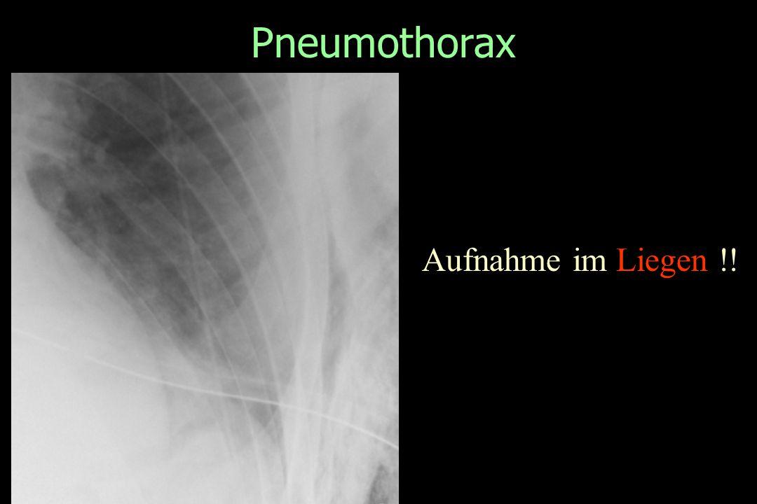 Pneumothorax Aufnahme im Liegen !!