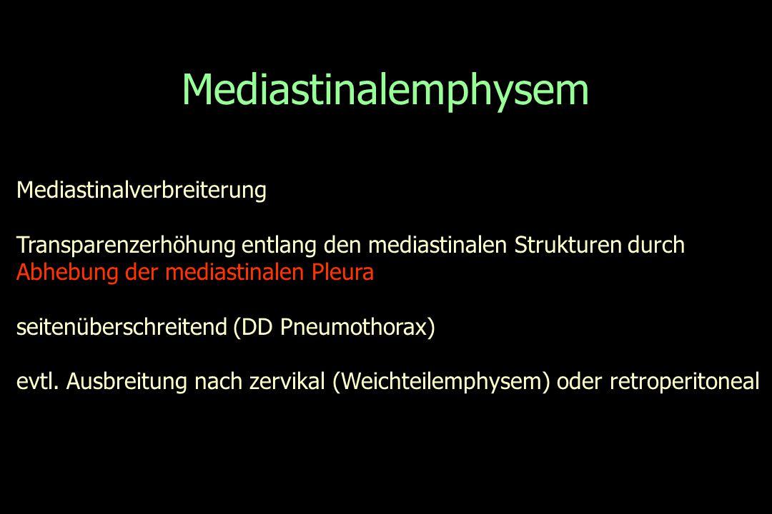Mediastinalemphysem Mediastinalverbreiterung