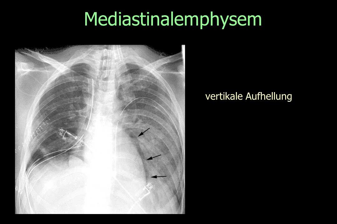 Mediastinalemphysem vertikale Aufhellung