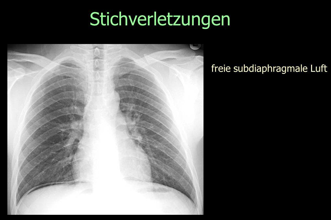 Stichverletzungen freie subdiaphragmale Luft