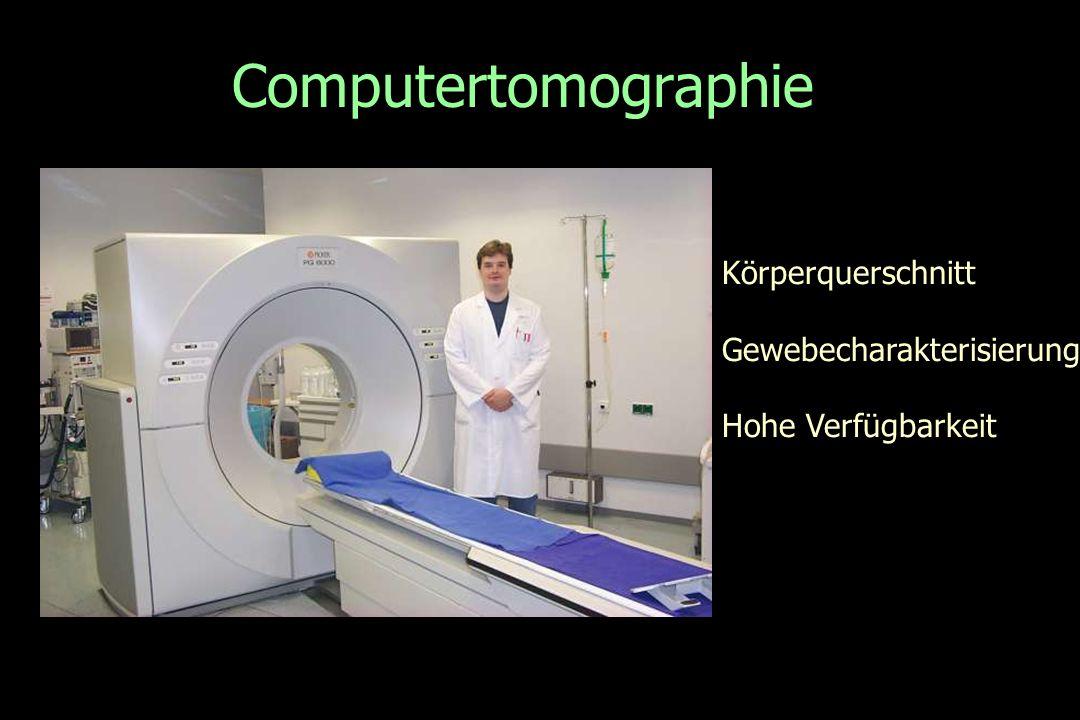 Computertomographie Körperquerschnitt Gewebecharakterisierung