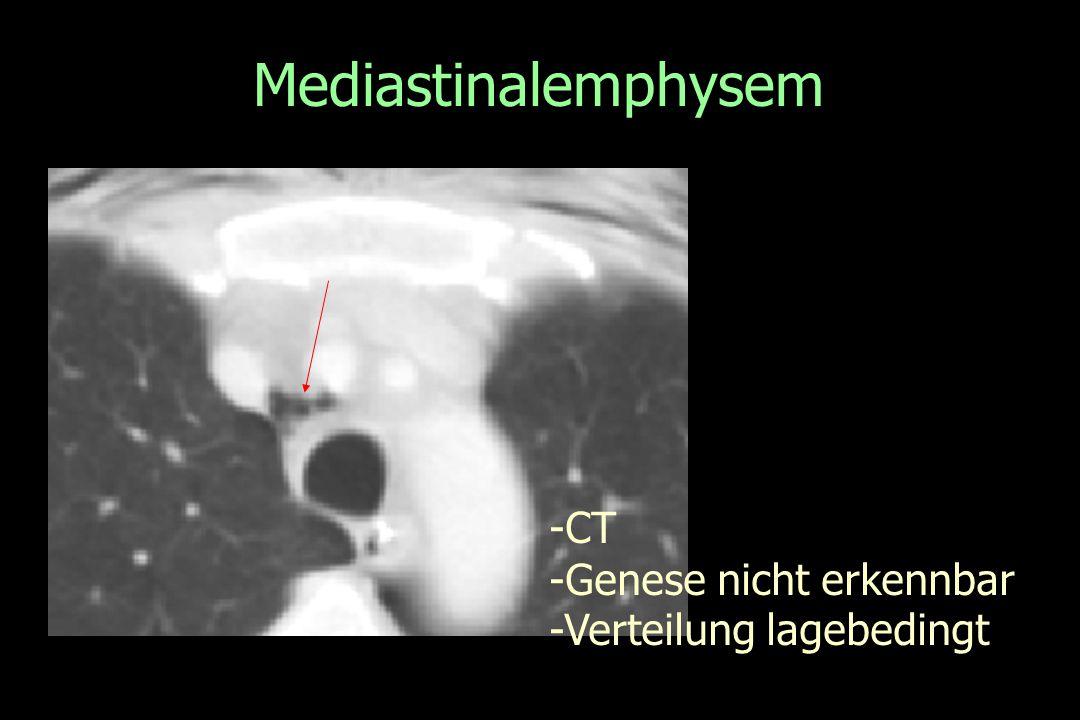 Mediastinalemphysem -CT -Genese nicht erkennbar