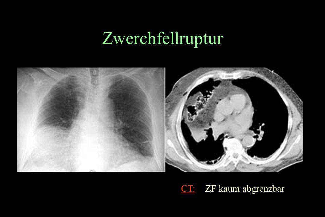 Zwerchfellruptur CT: ZF kaum abgrenzbar