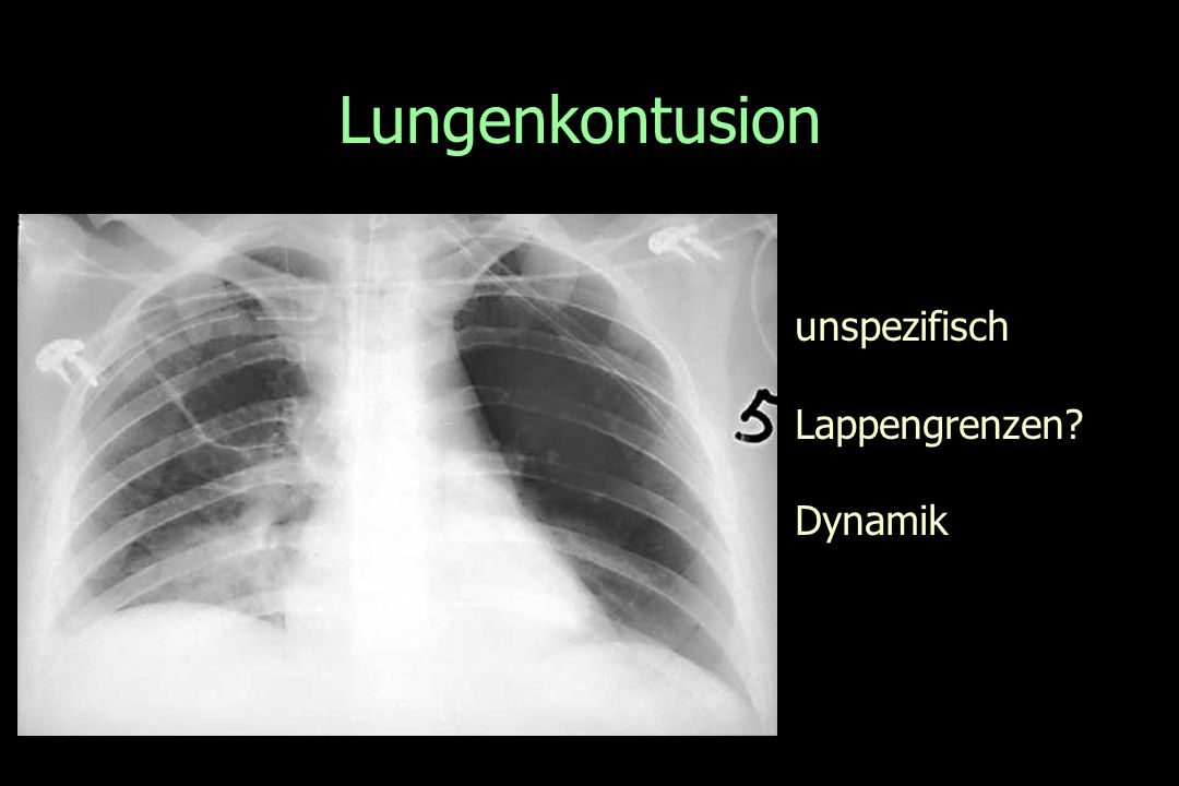 Lungenkontusion unspezifisch Lappengrenzen Dynamik