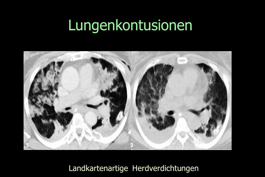 Lungenkontusionen Landkartenartige Herdverdichtungen