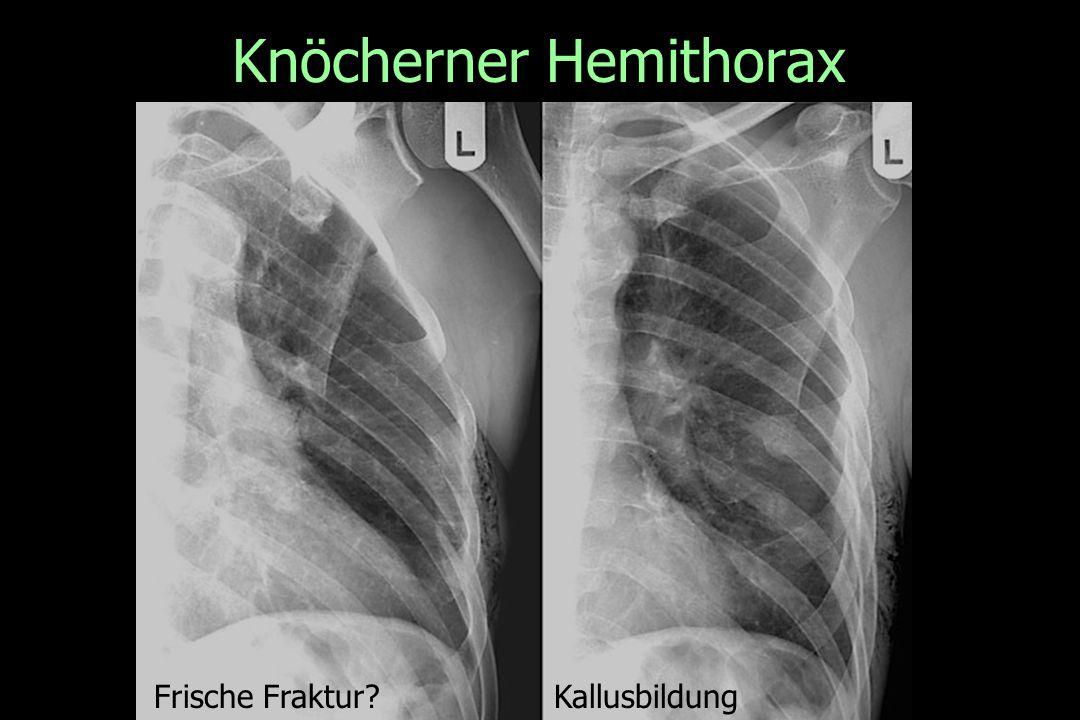 Knöcherner Hemithorax