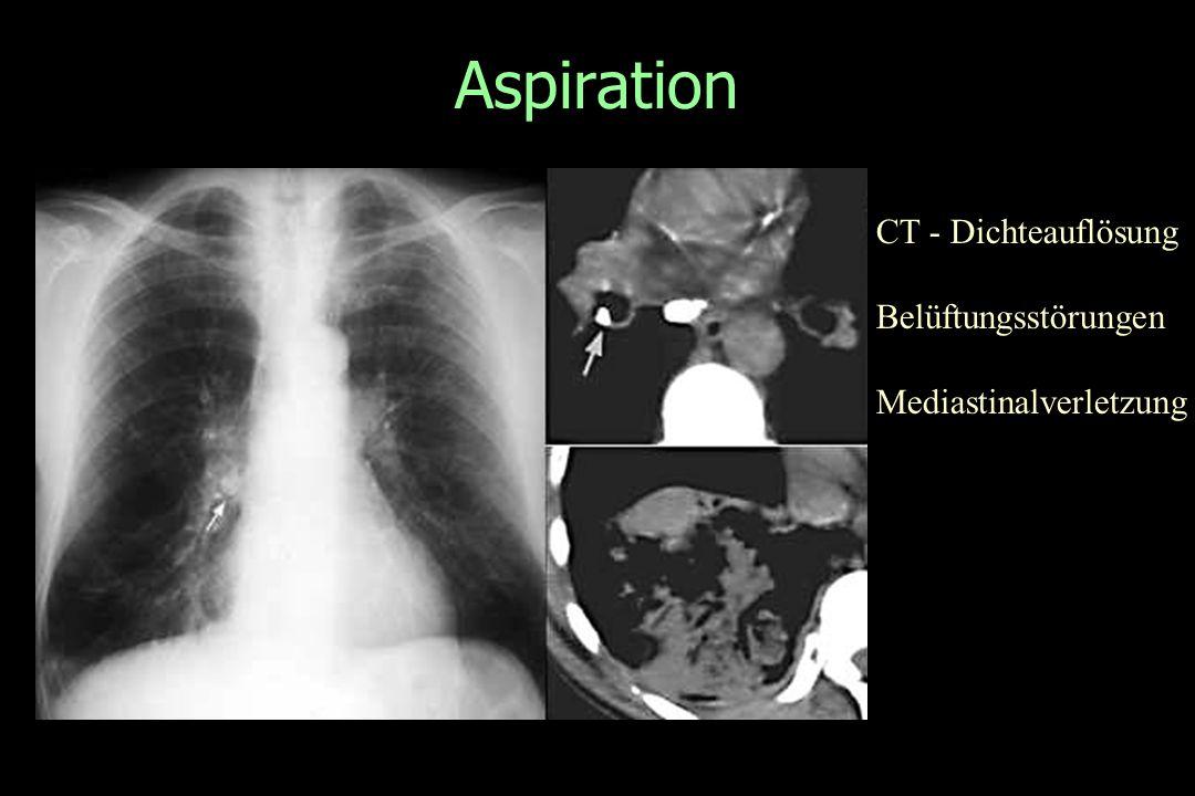 Aspiration CT - Dichteauflösung Belüftungsstörungen