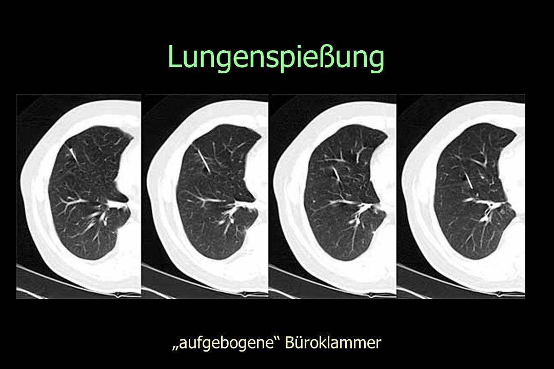 """Lungenspießung """"aufgebogene Büroklammer"""
